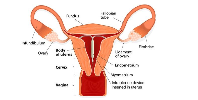 endometrial cancer mirena)